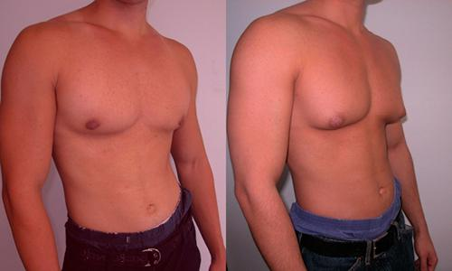 Gynecomastia-in-men
